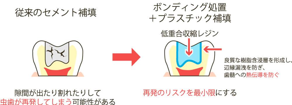 虫歯の再発のリスクを最小限にする